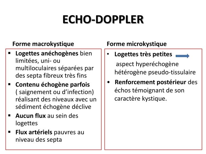 ECHO-DOPPLER
