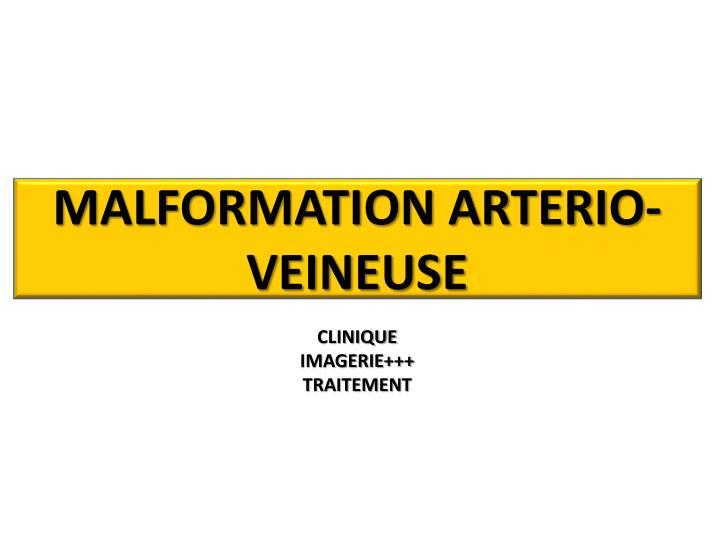 MALFORMATION ARTERIO-VEINEUSE