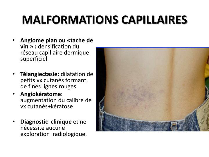 MALFORMATIONS CAPILLAIRES