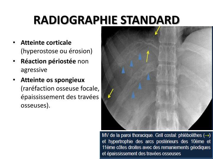 RADIOGRAPHIE STANDARD