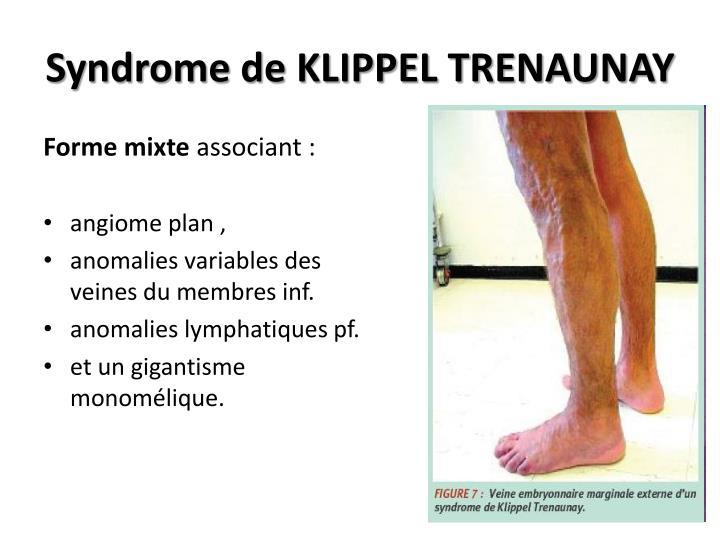 Syndrome de KLIPPEL TRENAUNAY