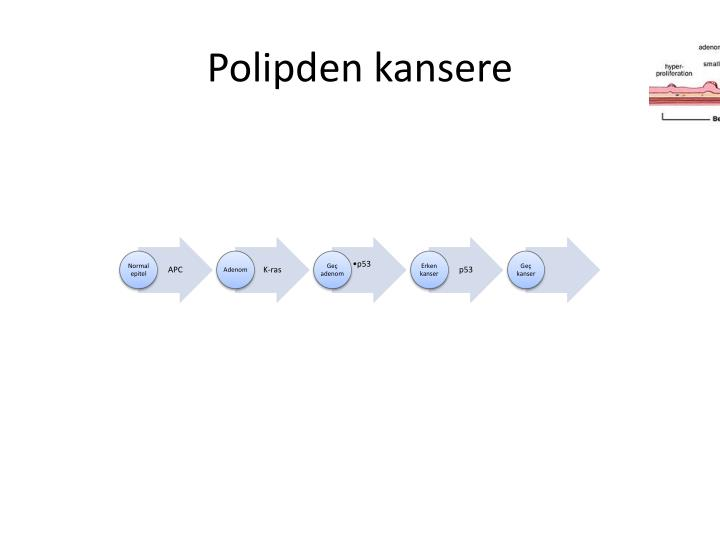 Polipden