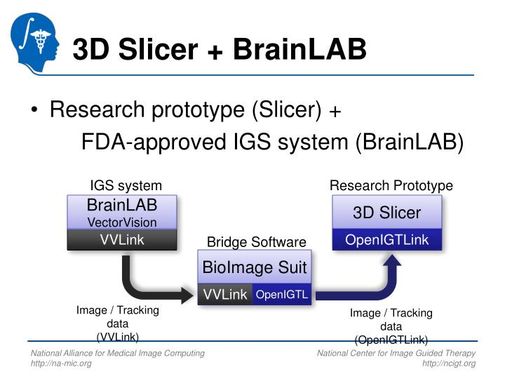 3D Slicer + BrainLAB