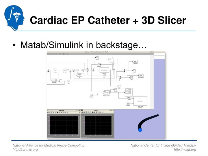 Cardiac EP Catheter + 3D Slicer