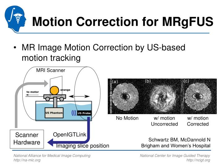 Motion Correction for MRgFUS