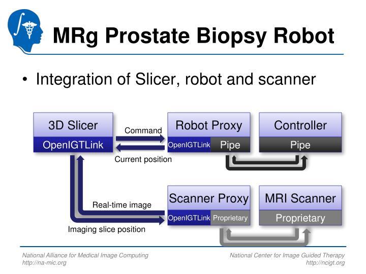 MRg Prostate Biopsy Robot