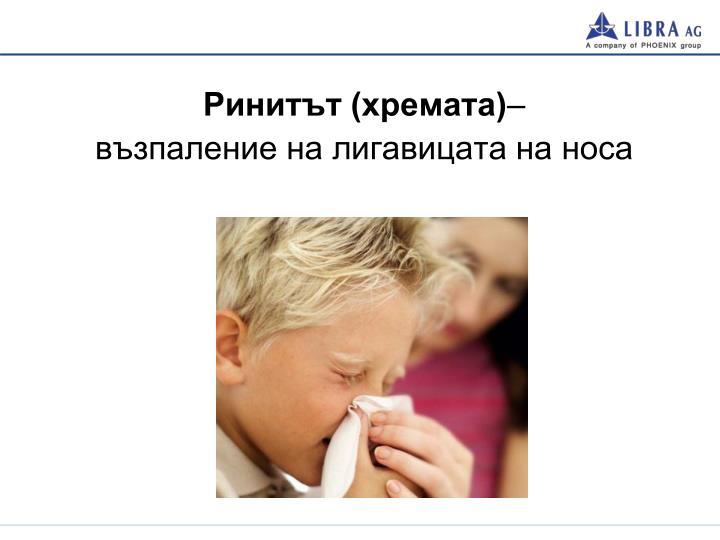 Ринитът (хремата)