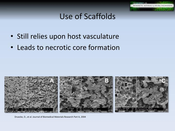Use of Scaffolds
