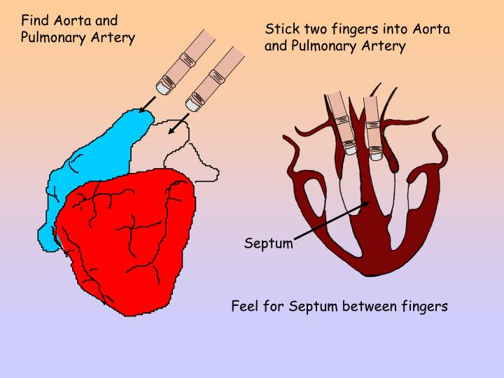 Stick two fingers into Aorta and Pulmonary Artery