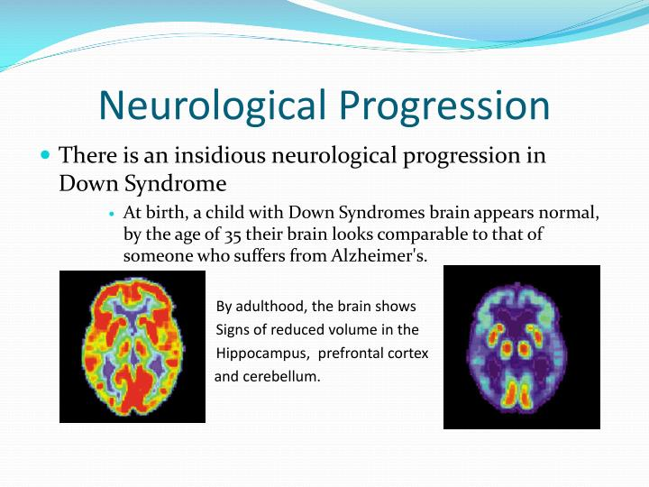 Neurological Progression