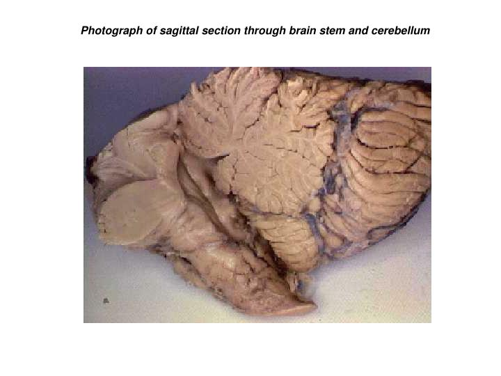 Photograph of sagittal section through brain stem and cerebellum