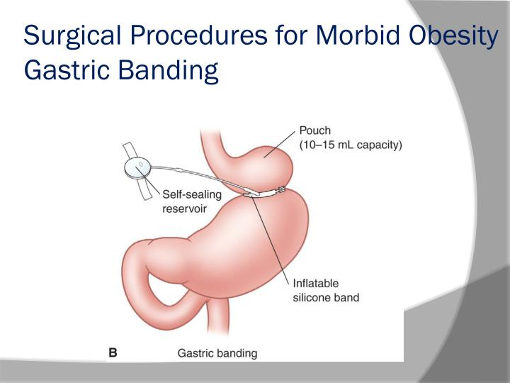 Surgical Procedures for Morbid Obesity