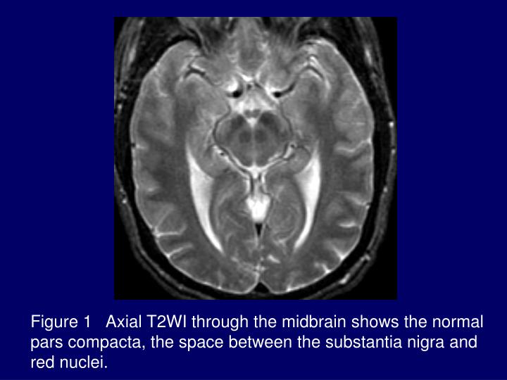 Figure 1   Axial T2WI through the midbrain shows the normal pars compacta, the space between the substantia nigra and red nuclei.