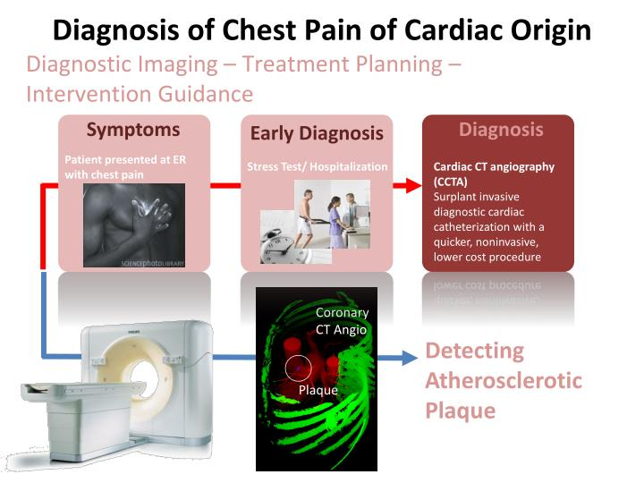 Diagnosis of Chest Pain