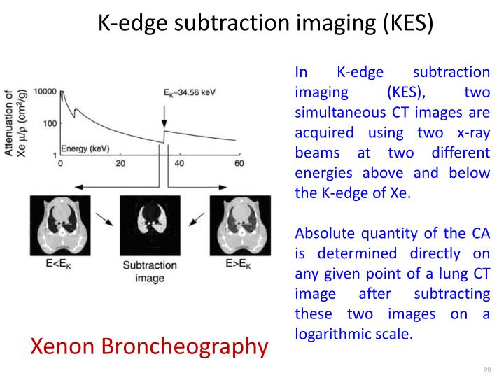 K-edge subtraction imaging (KES)