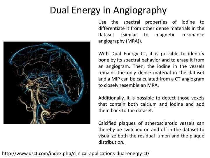 Dual Energy in Angiography