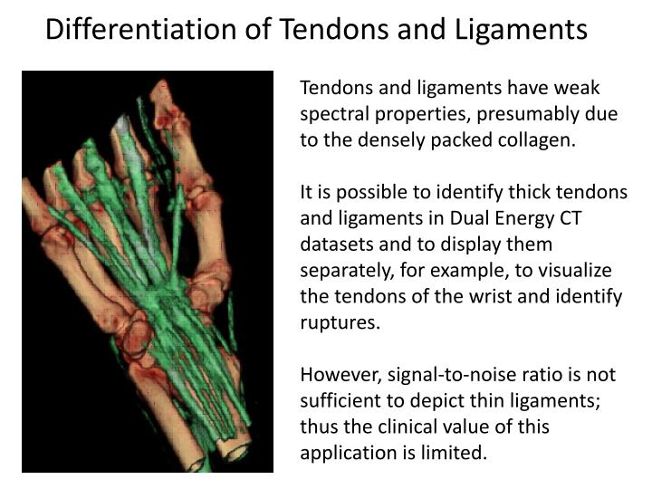 Differentiation of Tendons and Ligaments