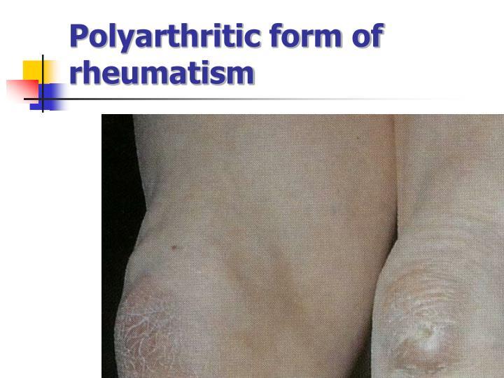 Polyarthritic form of rheumatism