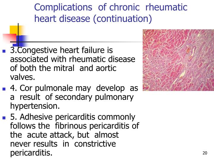 Complications  of chronic  rheumatic heart disease (continuation)