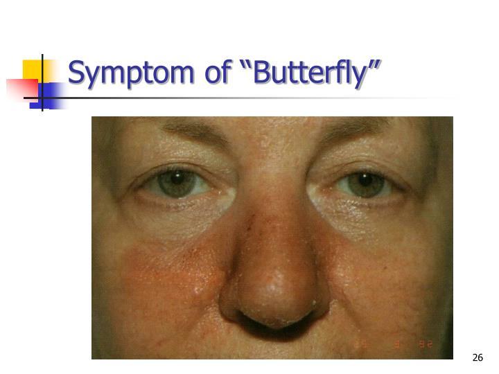 """Symptom of """"Butterfly"""""""