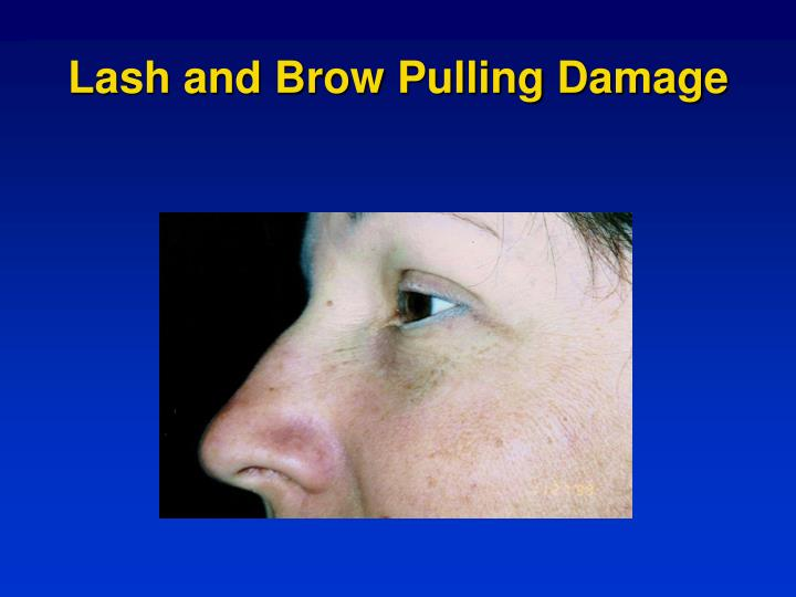 Lash and brow pulling damage
