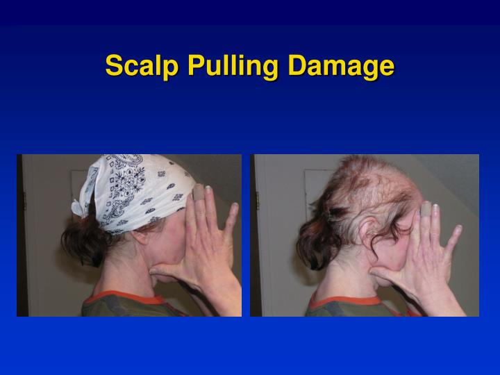 Scalp pulling damage