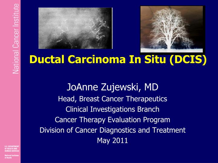 the treatment of a ductal carcinoma Nearly all women with ductal carcinoma in situ– an early stage of breast cancer– can be successfully treated learn about the 2 main subtypes of dcis.