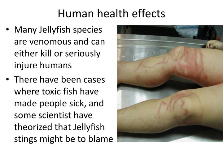 Human health effects