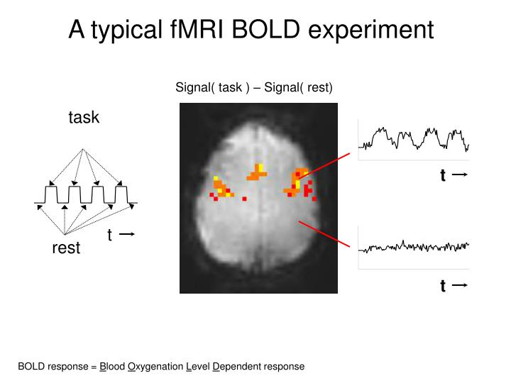 A typical fMRI BOLD experiment