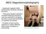 meg magnetoencephalography