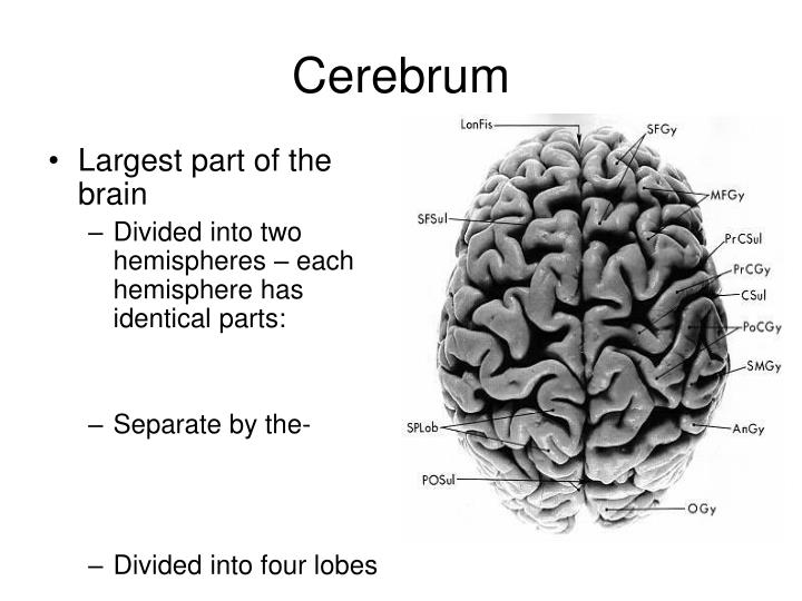 Largest part of the brain