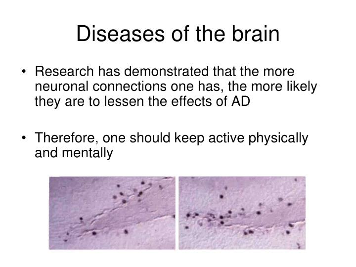Research has demonstrated that the more neuronal connections one has, the more likely they are to lessen the effects of AD