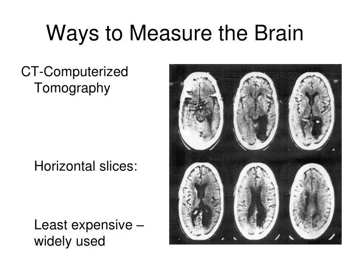 CT-Computerized Tomography
