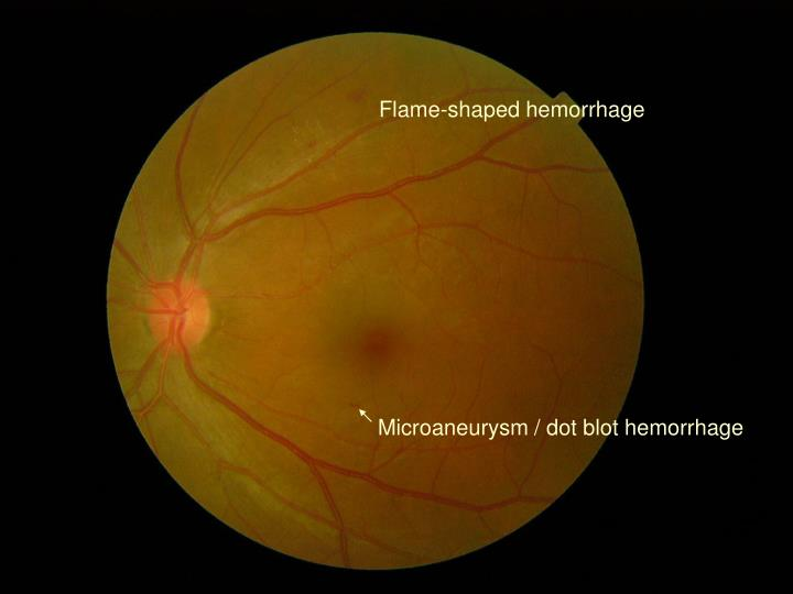 Flame-shaped hemorrhage