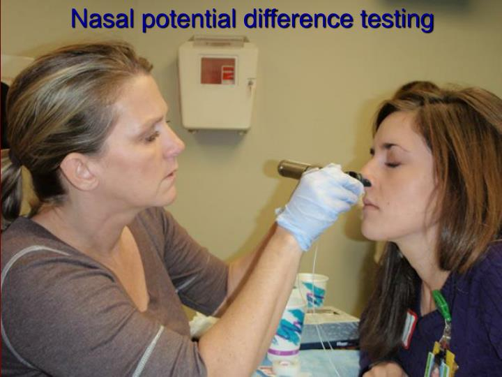 Nasal potential difference testing