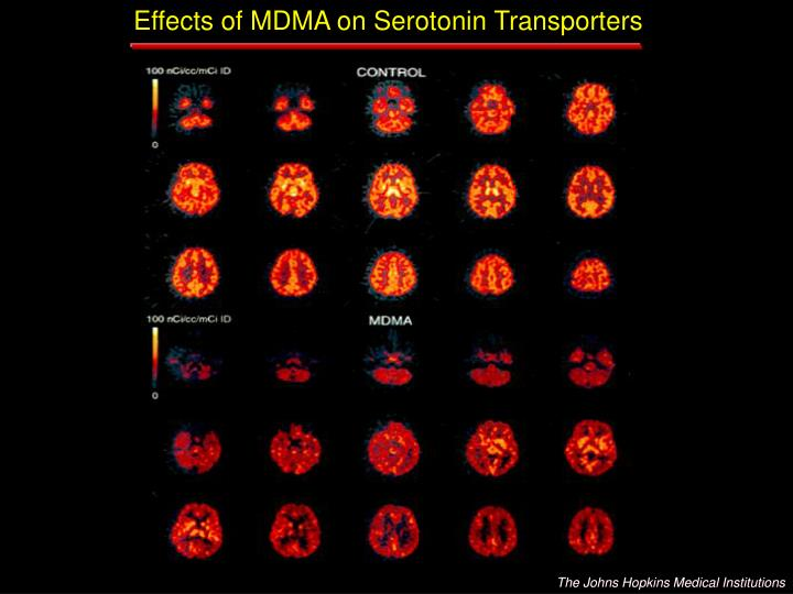 Effects of MDMA on Serotonin Transporters