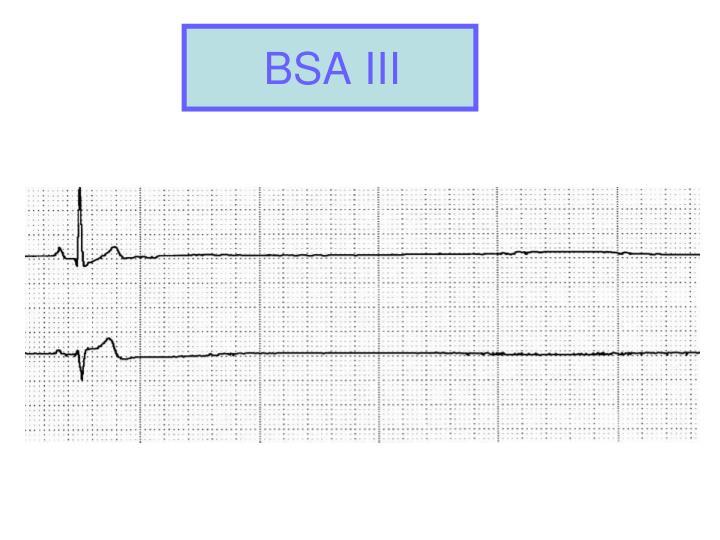 BSA III
