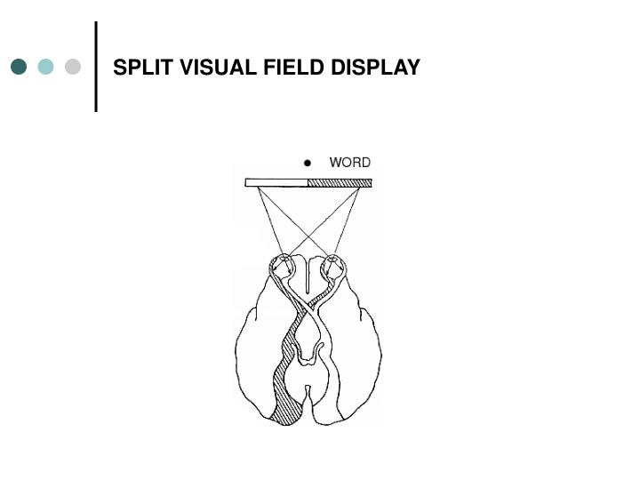 SPLIT VISUAL FIELD DISPLAY