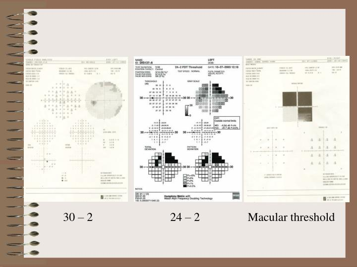 30 – 2                          24 – 2                Macular threshold