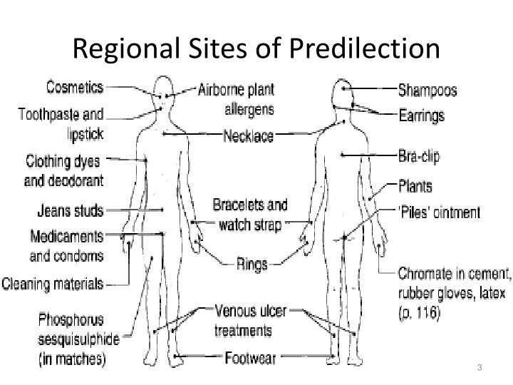Regional sites of predilection