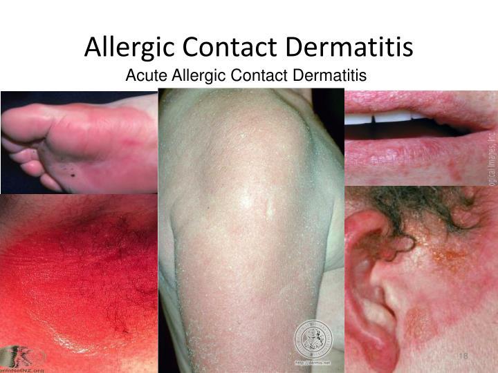 Allergic Contact Dermatitis