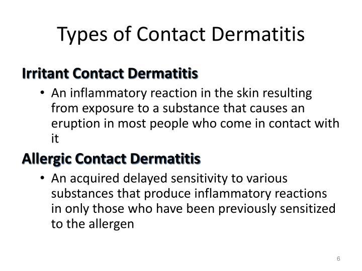 Types of Contact Dermatitis
