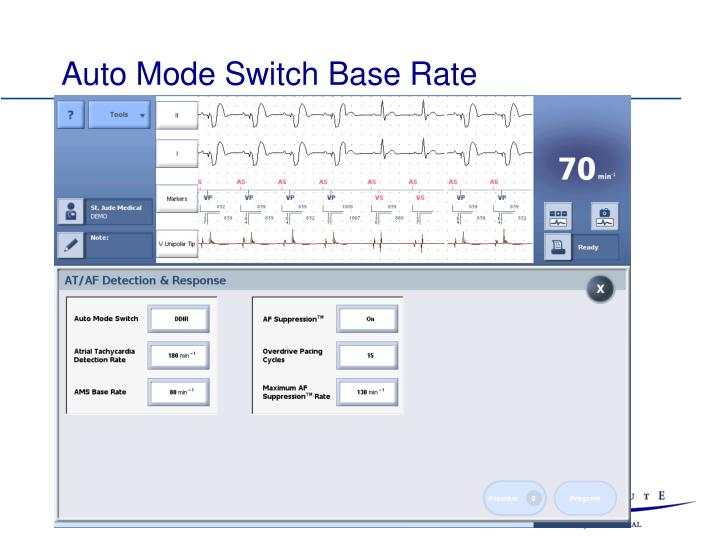 Auto Mode Switch Base Rate