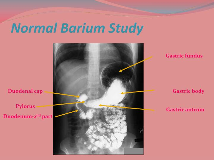 Normal Barium Study