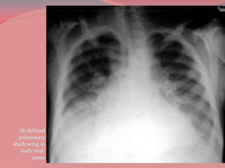 ill-defined pulmonary shadowing in both mid-zones