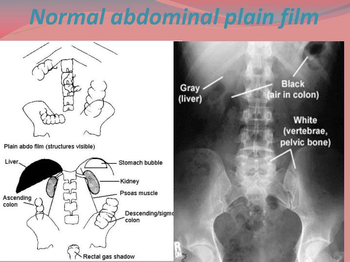 Normal abdominal plain film