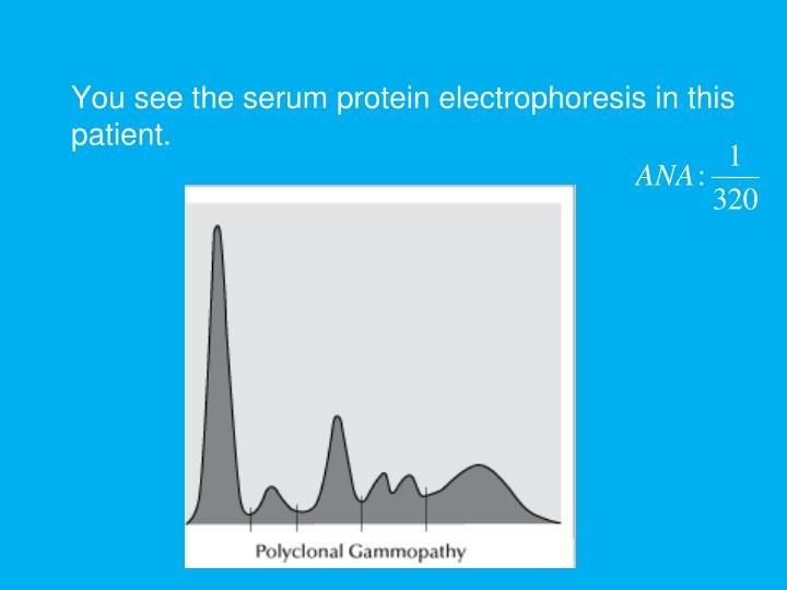 You see the serum protein electrophoresis in this patient.