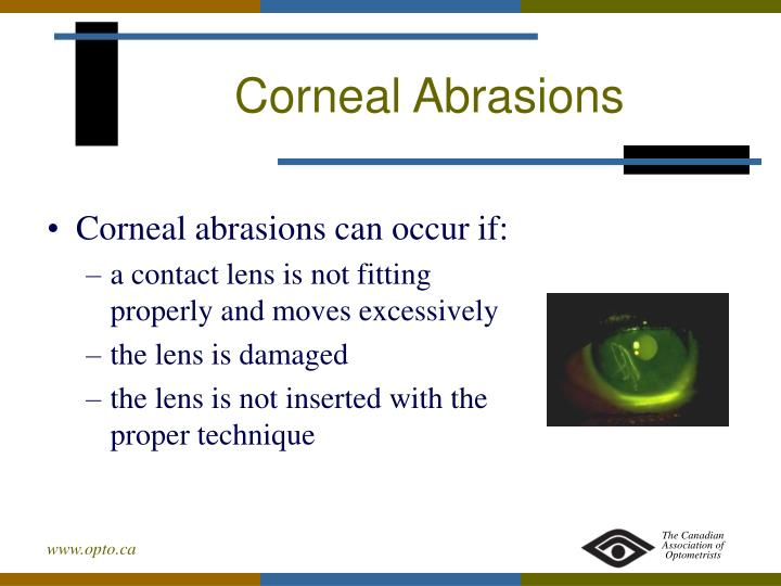 Corneal Abrasions