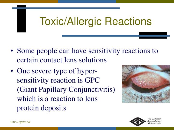 Toxic/Allergic Reactions