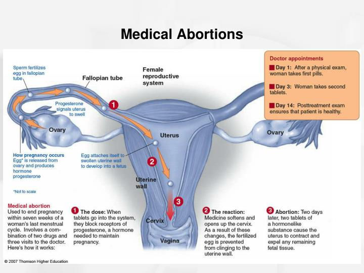 medical or surgical abortion Everywoman's health centre offers aspiration (surgical) and medication (medical) abortion with mifegymiso this chart explains the differences between the two types of abortion both are considered very safe everyone is a little different in how they experience each type of.